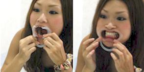 まずはお口に器具をはめます。