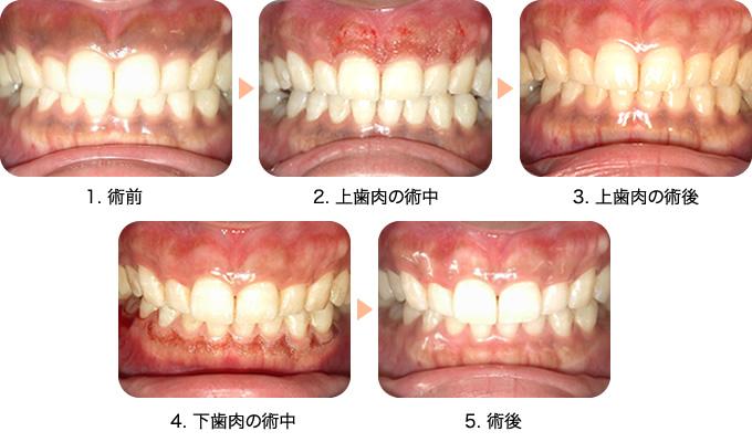歯ぐきの黒ずみを消す(色素沈着除去)