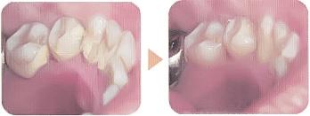 歯石除去 知覚過敏