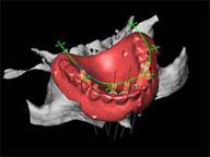 シミュレーションソフトを使用した治療計画
